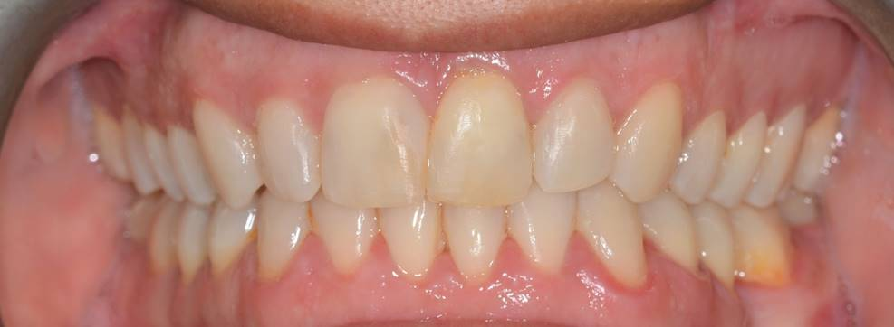 Restorative Dental work done by our talented doctors at PFCD