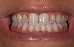 Restorative Dental work done by Dr. Long and Dr. Huynh-Le
